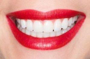 Ультразвуковая чистка зубов по супер цене в Оксфорд Медикал Черновцы